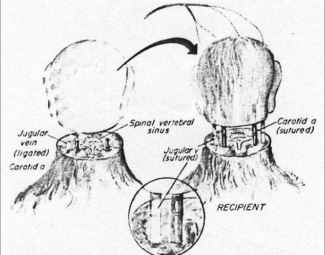 cấy ghép đầu người, phẫu thuật, hy hữu, đầu tiên thế giới