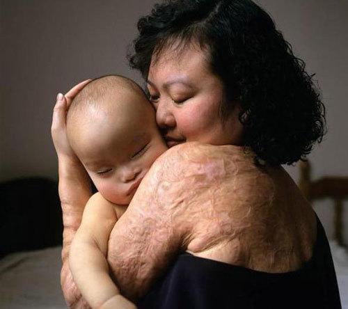 'Em bé napalm' không muốn sống trong quá khứ