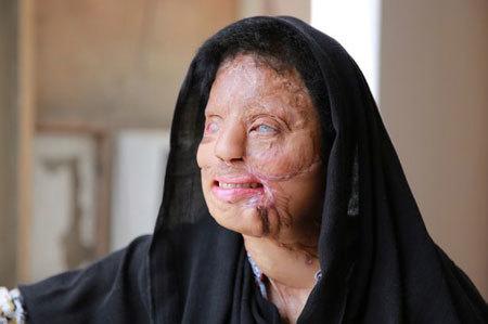 Chuyện tình như mơ của cô gái mù có khuôn mặt biến dạng