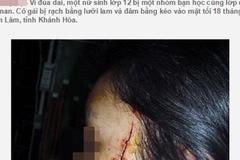 Lật tẩy chiêu trò tung tin nữ sinh bị cướp rạch mặt ở Hà Nội