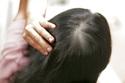 Ngăn tóc rụng bằng thảo mộc thiên nhiên