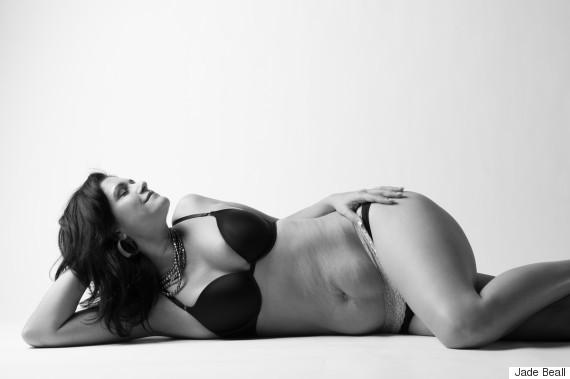 Bộ ảnh chân thực về cơ thể người mẹ sau sinh gây xúc động