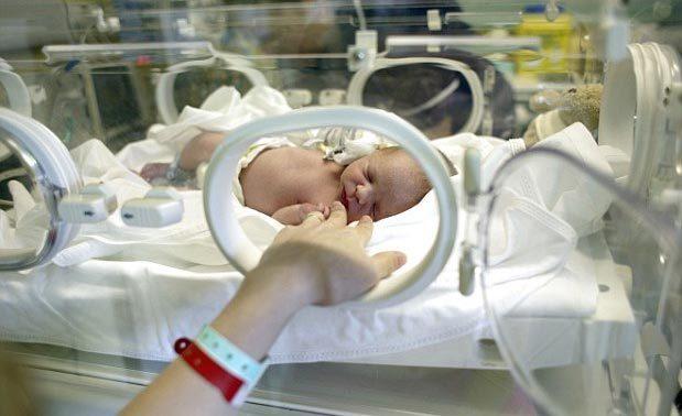 Sinh non làm thay đổi kết nối bộ não của trẻ