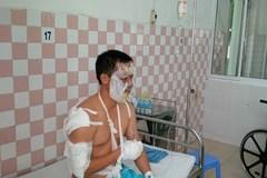 Cháy nổ lớn trong kho hóa chất, 17 chiến sĩ PCCC bị thương