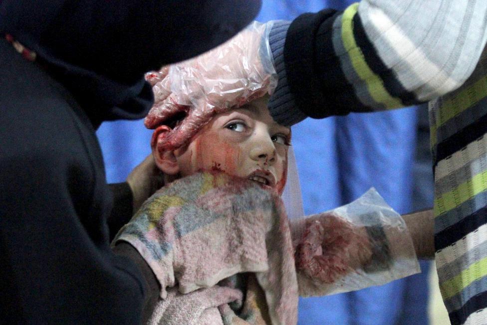 Ám ảnh gương mặt trẻ em trong chiến tranh tại Syria - 2