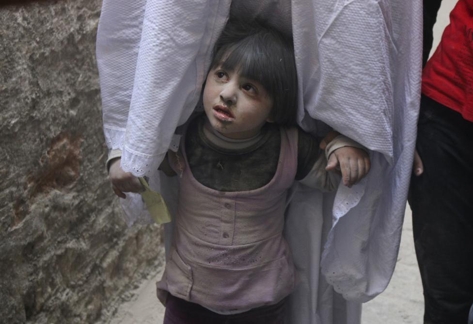 Ám ảnh gương mặt trẻ em trong chiến tranh tại Syria - 10