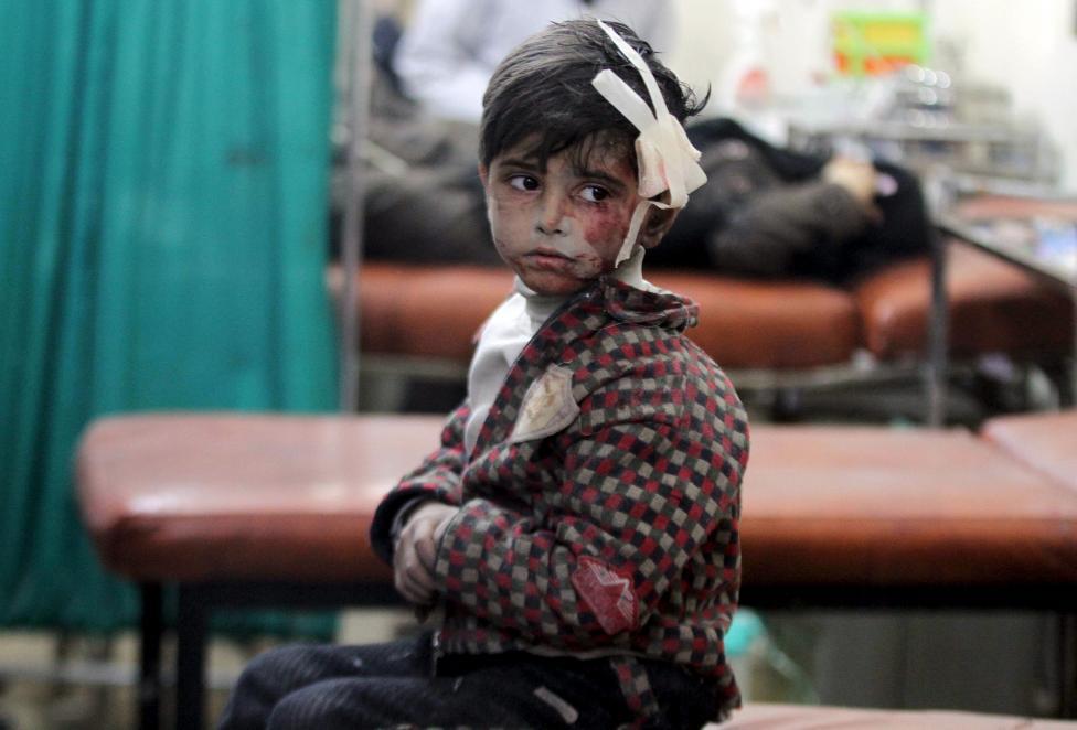 Ám ảnh gương mặt trẻ em trong chiến tranh tại Syria - 19
