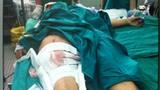 Nữ nạn nhân vụ xe ben tông sập nhà dân kể lại phút hãi hùng
