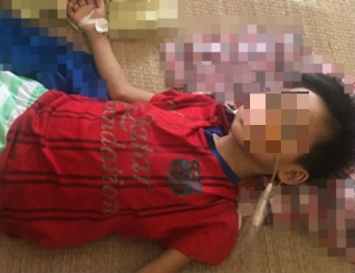 Uống nhầm axit, bé 7 tuổi phải cắt 2/3 dạ dày