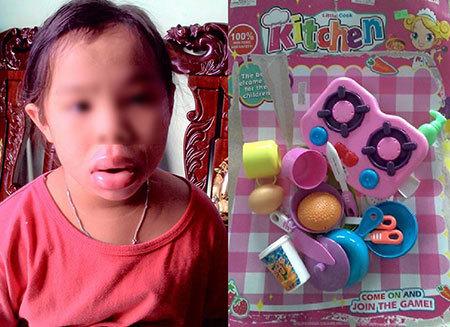 Đồ chơi độc gây biến dạng môi bé gái