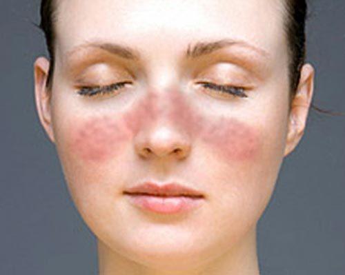 bệnh, khuôn mặt, nếp nhăn, nám da, tóc mỏng