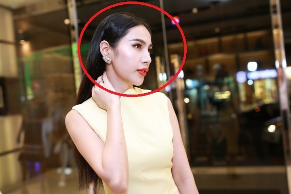 Tien Phong Thuy Thủy Tiên Phẫu Thuật