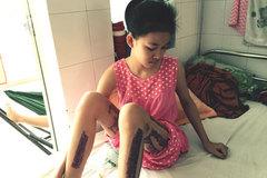 Thương bé bị tai nạn thiếu tiền phẫu thuật