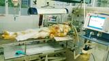 Người lính nghèo bị lột da toàn thân vì bỏng nặng