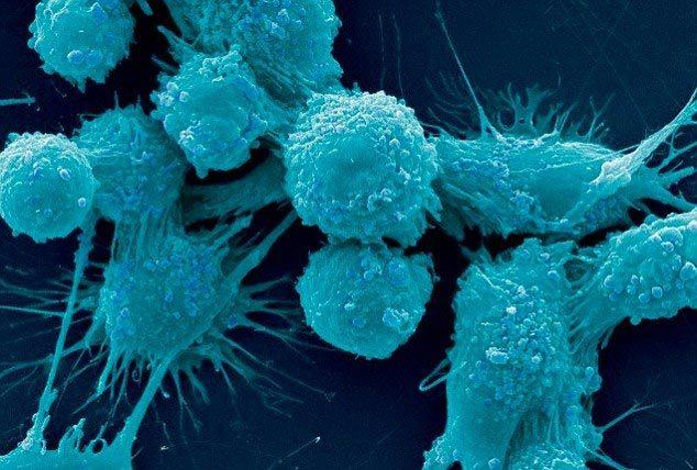 Phát hiện 'công tắc' giúp ung thư di căn