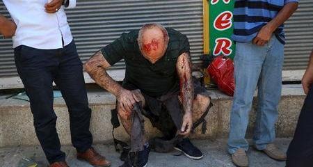 Nổ lớn ở Thổ Nhĩ Kỳ, thương vong la liệt