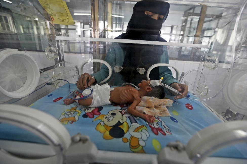 suy dinh dưỡng, chiến tranh, xung đột, trẻ em, nạn nhân, Yemen