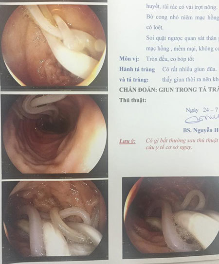 Kinh hoàng phát hiện từng búi giun chui lên tá tràng thai phụ