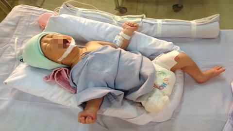 thai nhi, sơ sinh, bụng mẹ, tai nạn, văng, cụt chân, bi kịch, bệnh viện Nhi đồng 1